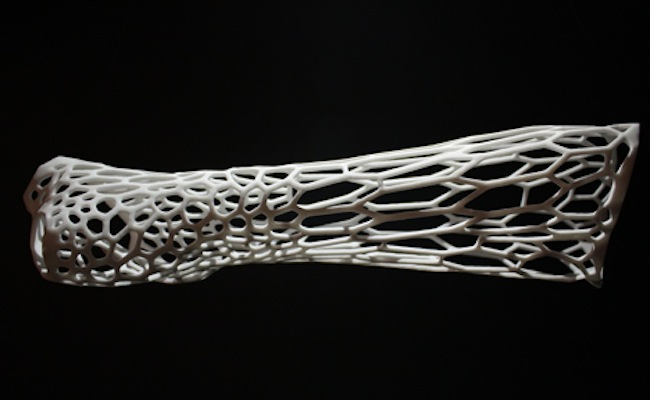 impression-3D-cortex