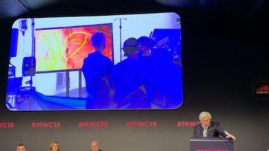 Photo de E-santé: une opération chirurgicale télémonitorée via la 5G permet de considérablement réduire le temps de latence